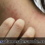 Dermatite! Descubra um pouco mais a respeito da doença!
