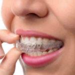 Como funciona a contratação de um convênio odontológico?